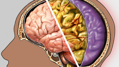 Menenjit Nedir? Menenjit Belirtileri ve Tedavisi